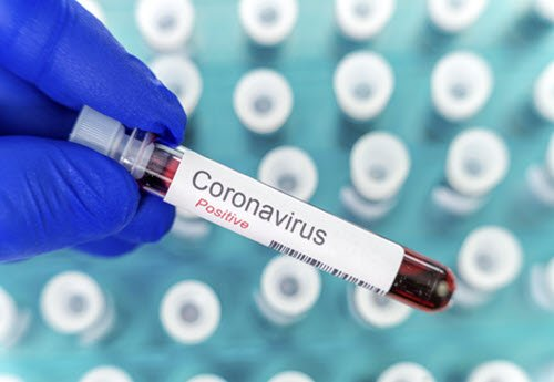 pathology blood sample dr coronavirus positive dignosis